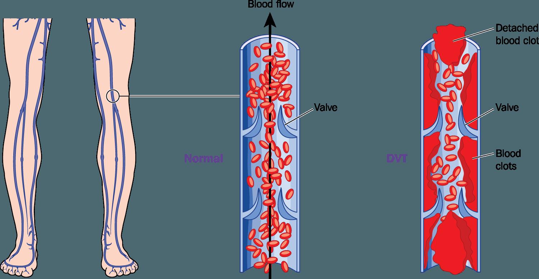 What is Deep Vein Thrombosis (DVT)?