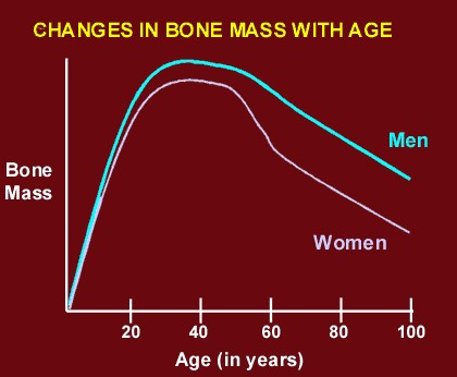 Men and Osteoporosis